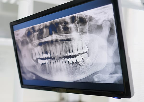 Panoramic Xray - Newmarket dentists by Woo Dental