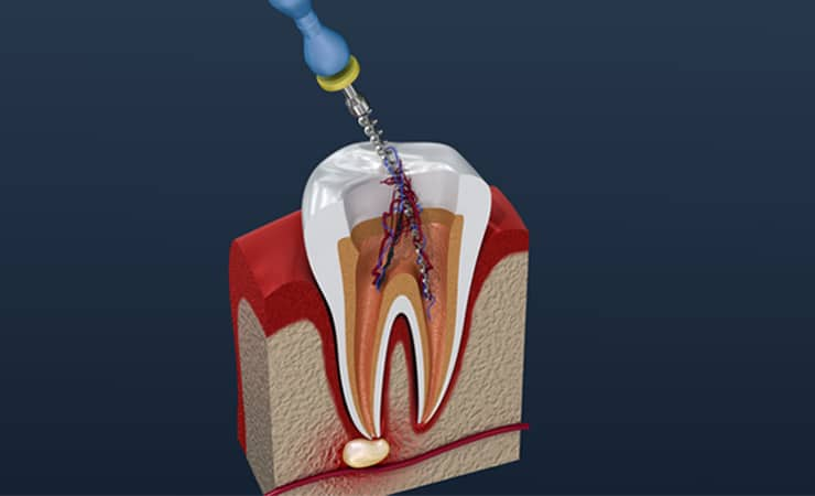 Root Canal Treatment - Newmarket dentists by Woo Dental